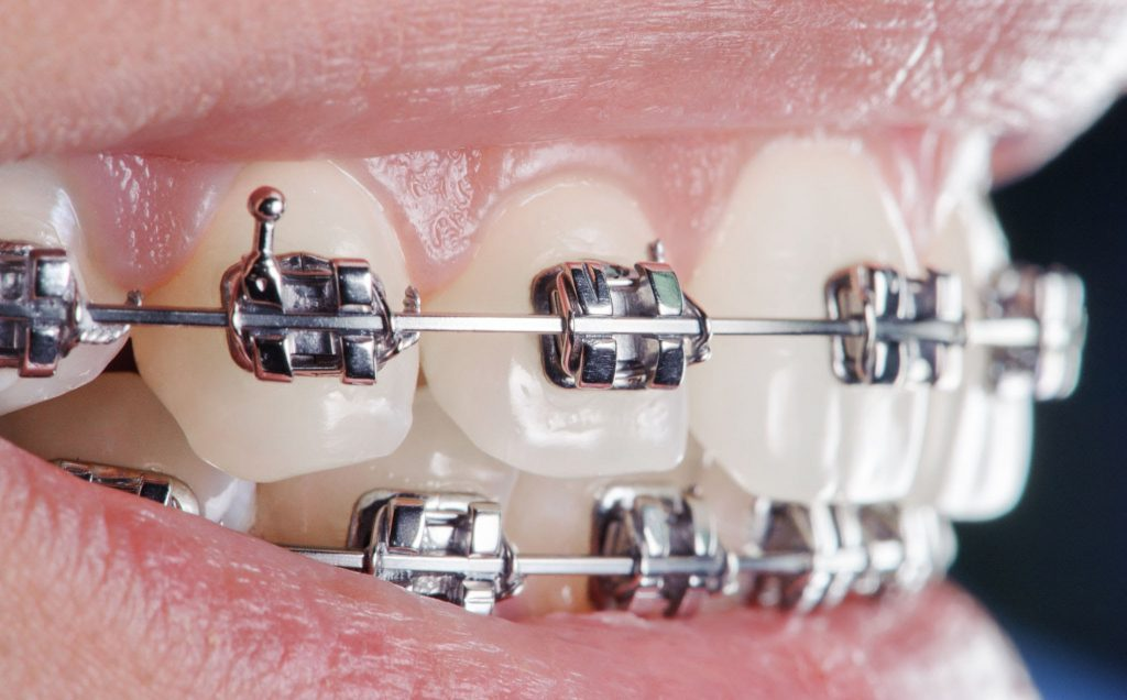 ortodonti nedir, ankara ortodontik tedavi, akara çocuk ortodontisi, Tedavide Kullanılan Yöntemler Nelerdir, Tedavi Sırasında Nelere Dikkat Etmek Gerekir, Ortodontik Tedavi Ne Kadar Sürer, Ankara Yetişkinlerde Ortodontik Tedavi, Porselen Braketler, Lingual Braketler, Invisalign, Clear Aligner, Ankara Şeffaf Plak, Hareketli Apareyler, Ortodontik Tedavinin Alternatifi var mı, Ortodontik Bozukluklar